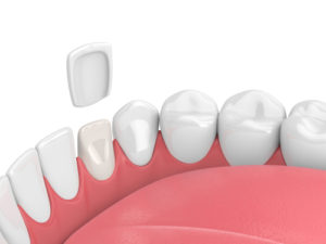 Dental Veneer Image